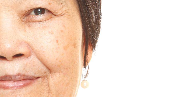 وصفات طبيعية تخفي البقع الداكنة وتبيض البشرة