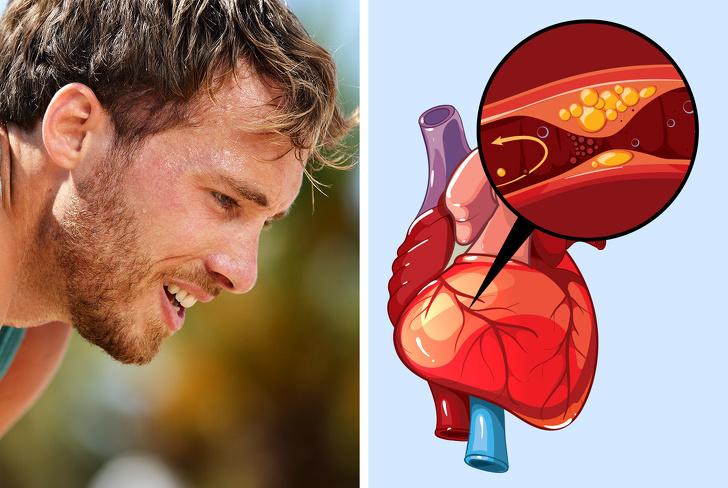 النوبات القلبية