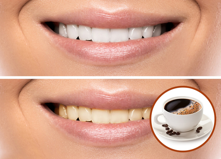 عادات شائعة تقومين بها تضر بصحة أسنانك