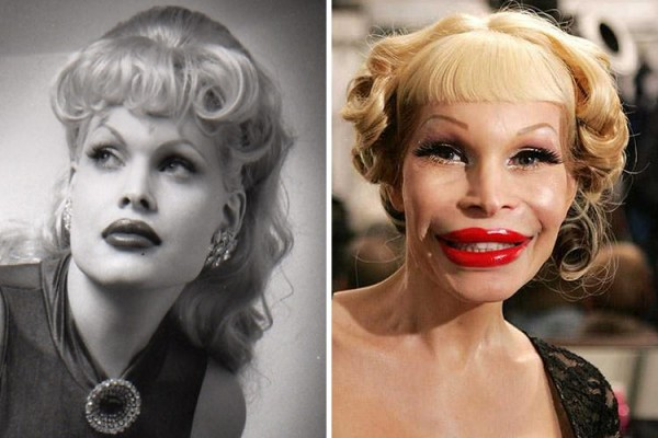 Amanda Lepore before & after