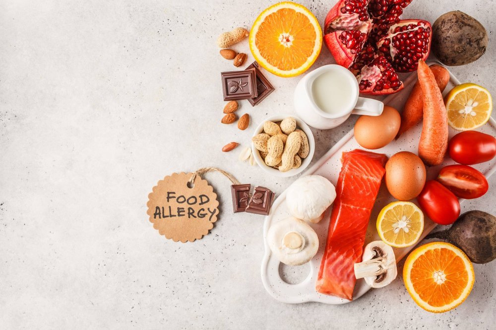 13علامة على حساسية الطعام يجب عدم تجاهلها أبدًا | مجلة الجميلة