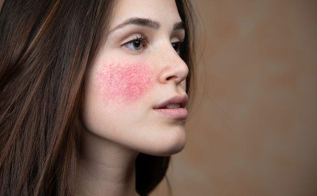 علاج احمرار الوجه الدائم مجلة الجميلة